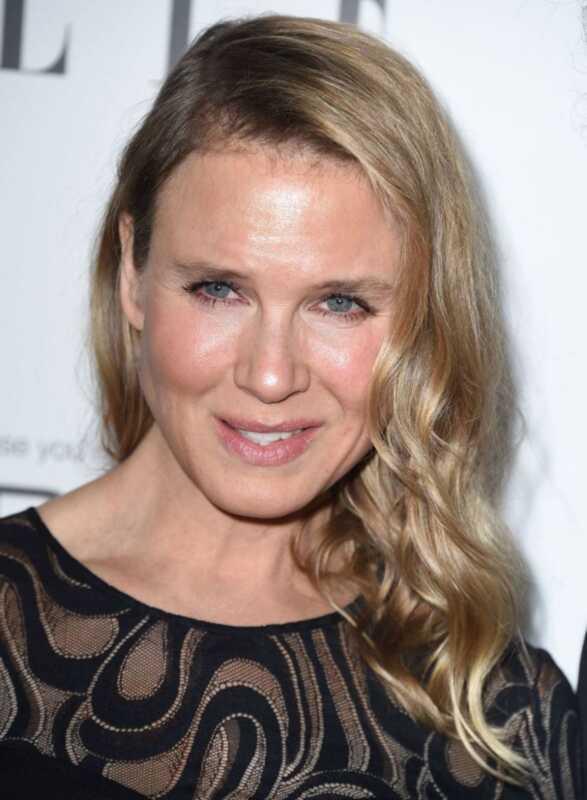 Ang ginawa ni Renee Zellweger sa kanyang mukha, ayon sa mga plastic surgeon