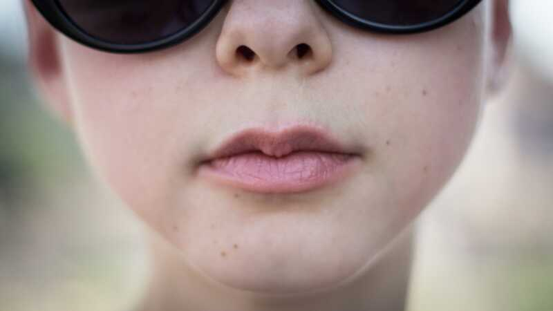 6 z najbežnejších zložiek lip Balm, ktoré spôsobujú suché pery