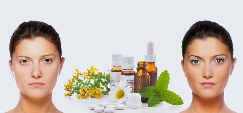 10 najlepší spôsob liečby homeopatie kožných problémov