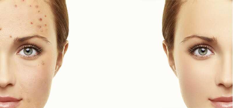 10 millors consells per a la cura de la pell de Rosàcia