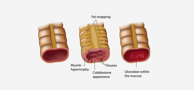 Crohnova choroba Diéta plán - čo je to a ako to funguje?