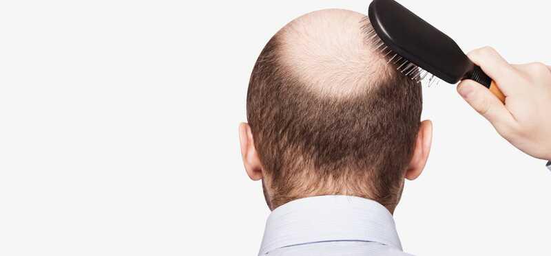 Čo je DHT vypadávanie vlasov a ako to liečiť?