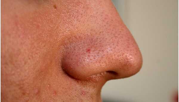 11 verschillende soorten acne en hoe ze te identificeren?