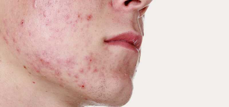 Acne per a adults: tipus, causes, problemes i cura