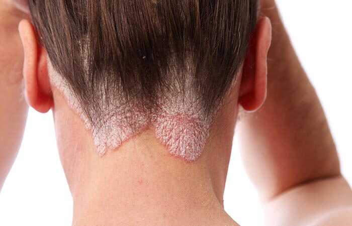 15 geriausių namų vaistų veiksmingai atsikratyti galvos odos psoriazės