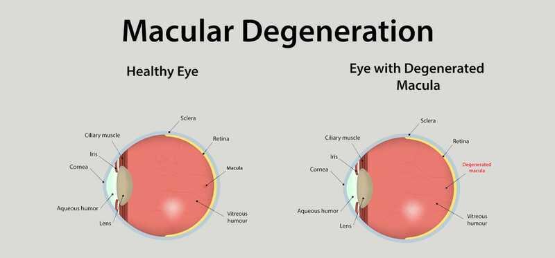 20 efikasnih kućnih lijekova za Cure Macular Degeneration