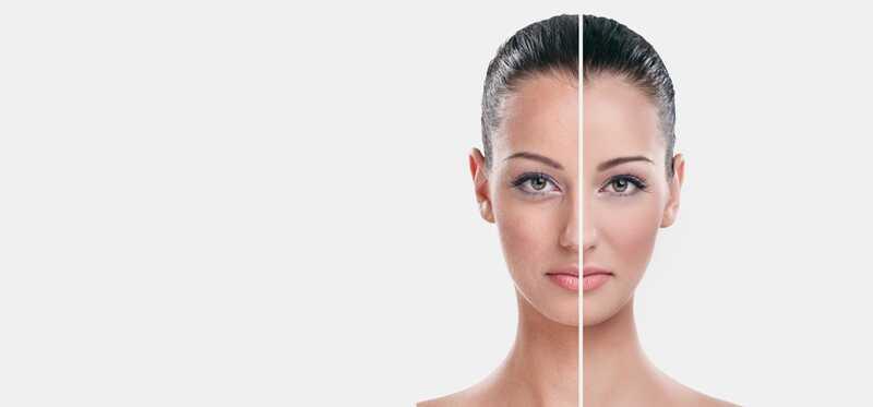 10 účinných domácich prostriedkov na omladenie pokožky