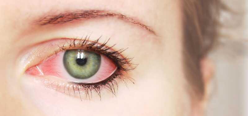25 účinných domácich liekov na liečbu očných infekcií