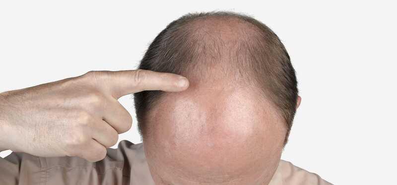 Čo je čelná strata vlasov a ako to liečiť?