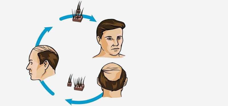 Top 10 hair Transplant centers sa Indore