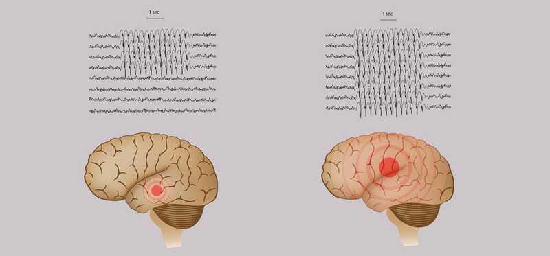 20 efektívnych domácich liekov pre epilepsiu