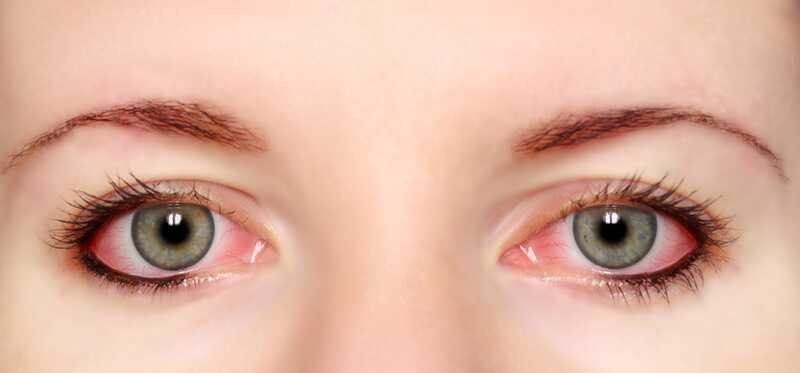 21 efektívnych domácich liekov na červené oči