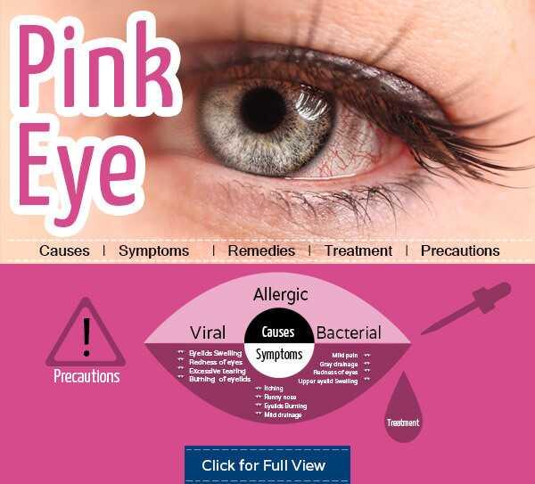 Top 10 domácich prostriedkov na získanie úľavy od ružového oka