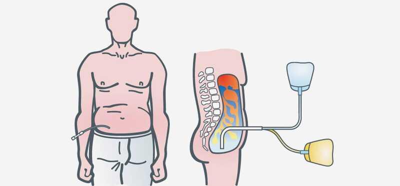 Dialyzačná diéta pacientov: 4 dôležité zložky na monitorovanie
