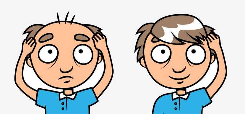 Ласерски третман за коса Раст - врвни клиники