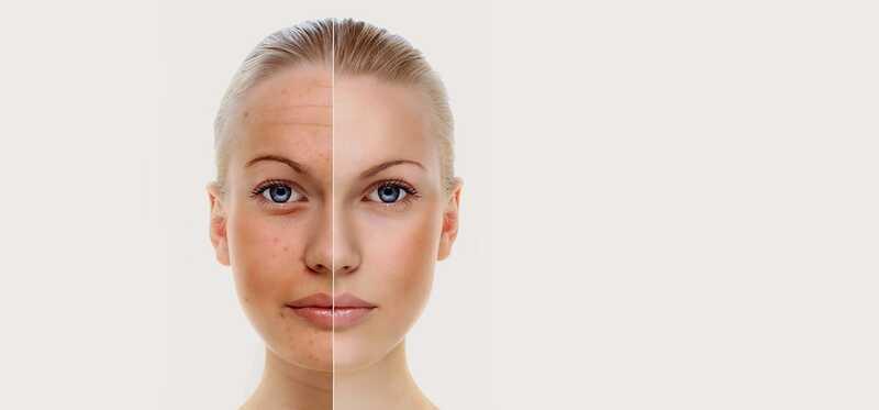 5 užitočných tipov na make-up, aby ste vyzerali na póry menšie