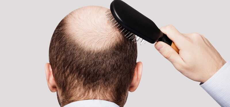 Mesoterapija za rast kose - radi li?