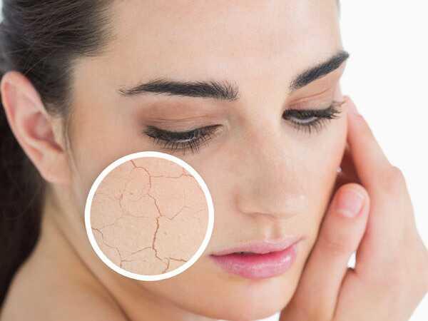 10 vrchných hrotov pre suchú pokožku