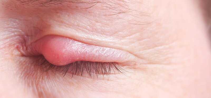 Ako odstrániť pupienky na očné viečka?