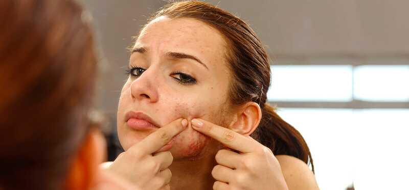 5 jednoduché, ale veľmi účinné liečby akné Vulgaris