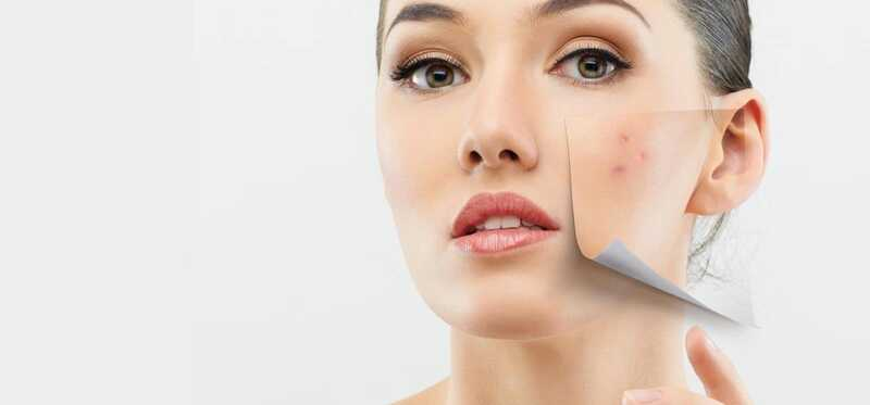 10 jednoduchých liekov na liečbu suchého kože na tvári s akné