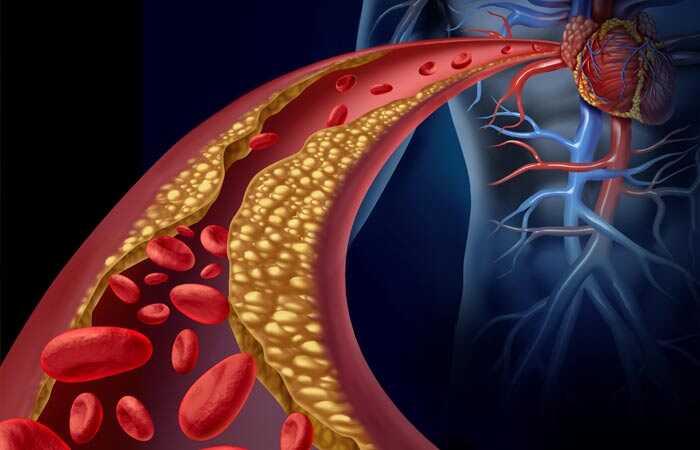 5 Kľúčové veci, ktoré musíte urobiť po konzumácii vysokej hladiny cholesterolu