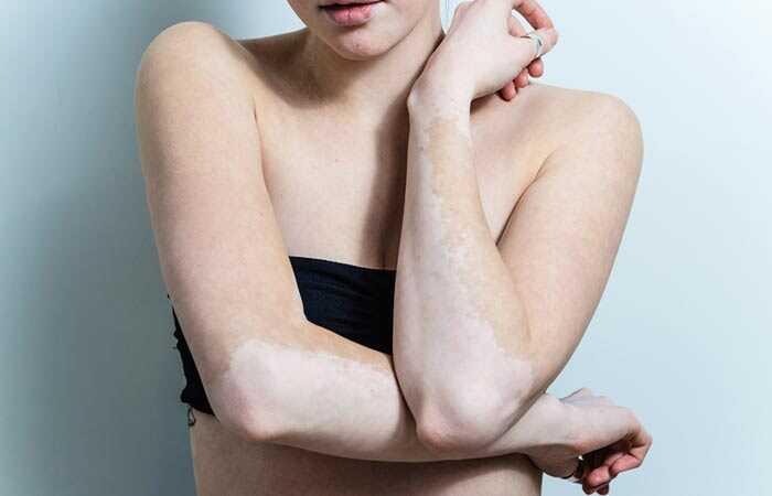 Vitiligodiet - hvad er det, og hvordan hjælper det med at behandle vitiligo?