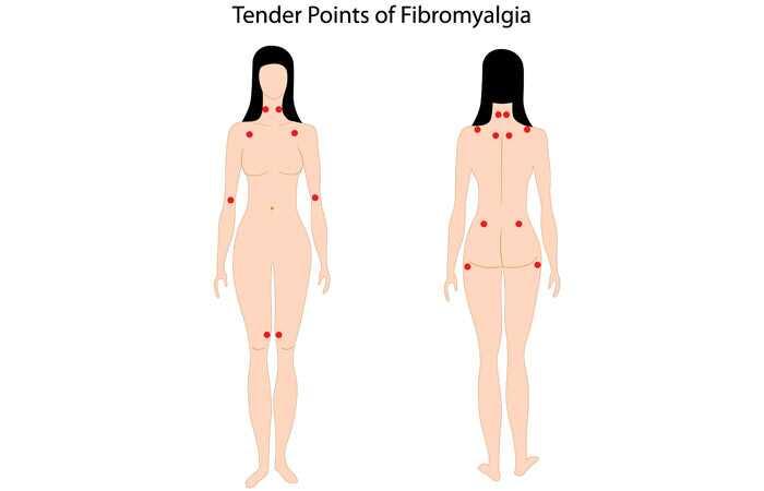 8 jednoduché jogy predstavuje, že bude liečiť fibromyalgia rýchlo