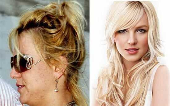 10 celebritats amb acne: sí, tu no ets l'únic!