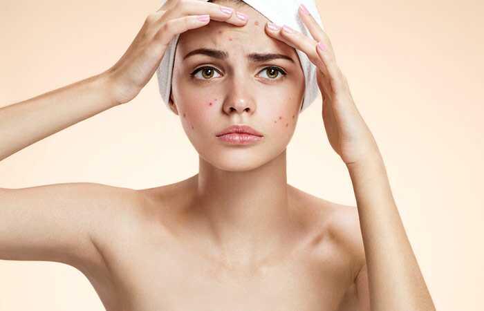 20 najboljih pogodnosti ulje za pepermint za kožu, kosu i zdravlje