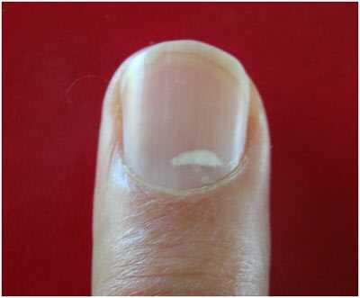 näringsbrist naglar